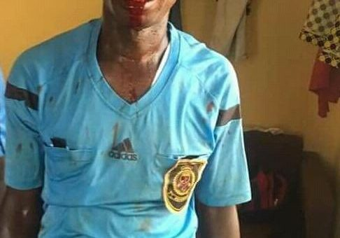 CAF To Investigate Assault On Referees In Ghana League